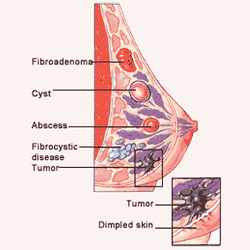 the risks characteristics and symptoms of breast cancer a malignant disease Although the risk of breast cancer was lower among patients who were treated   topographic features, and treatment, was collected by a review of medical   risks of any subsequent malignant neoplasm after treatment for.